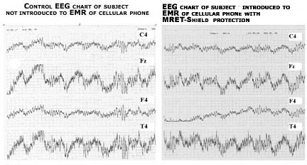 EEG Test Results