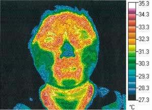 Thermography Test 1