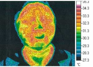 Thermography Test 2