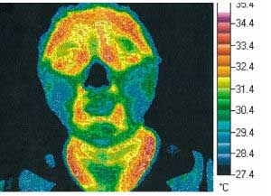 Thermography Test 3